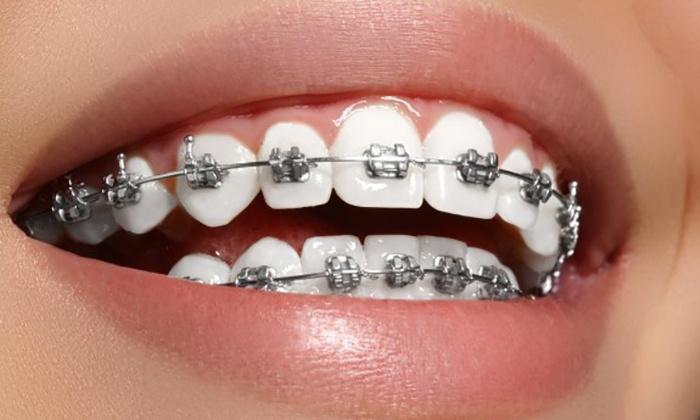 aparat dentystyczny